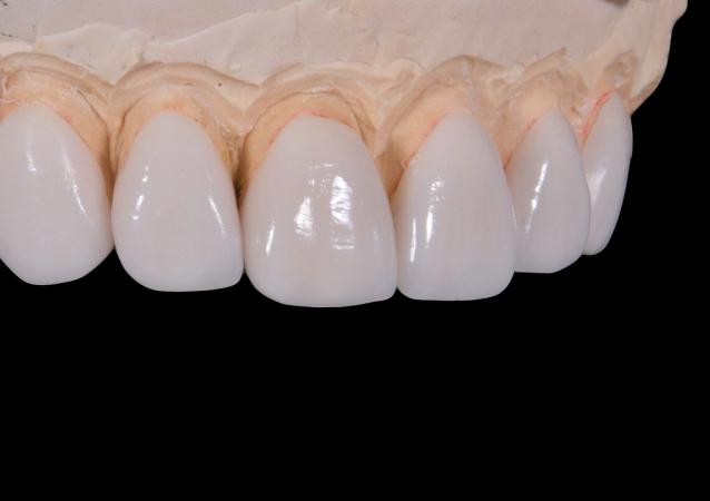 Los dientes de porcelana (imagen referencial)