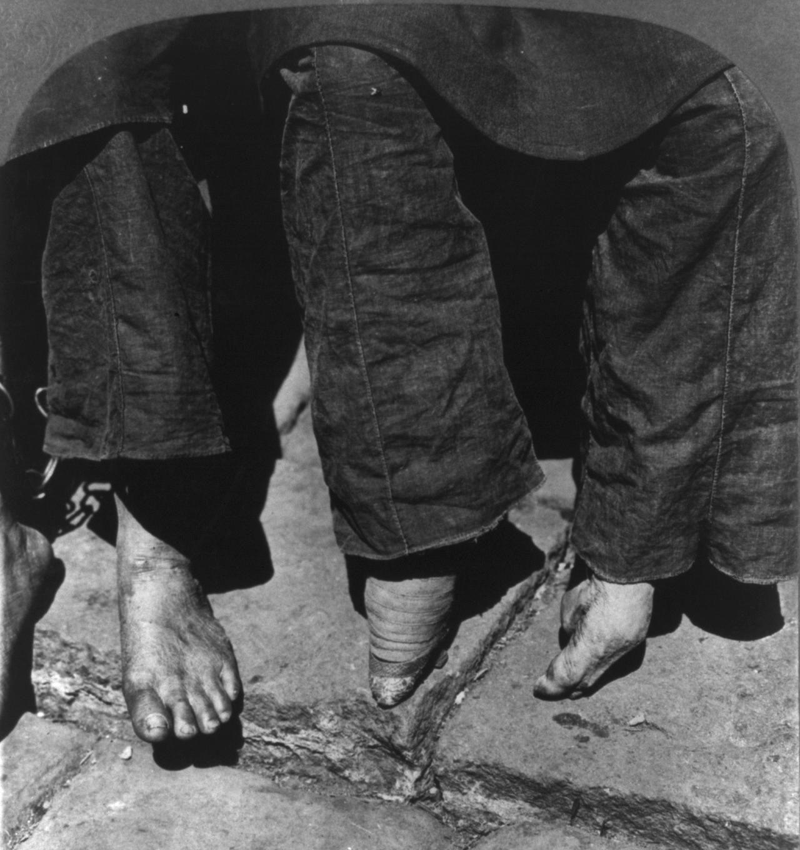 Un pie vendado en comparación a uno sin vendar en Canton (China) en 1902