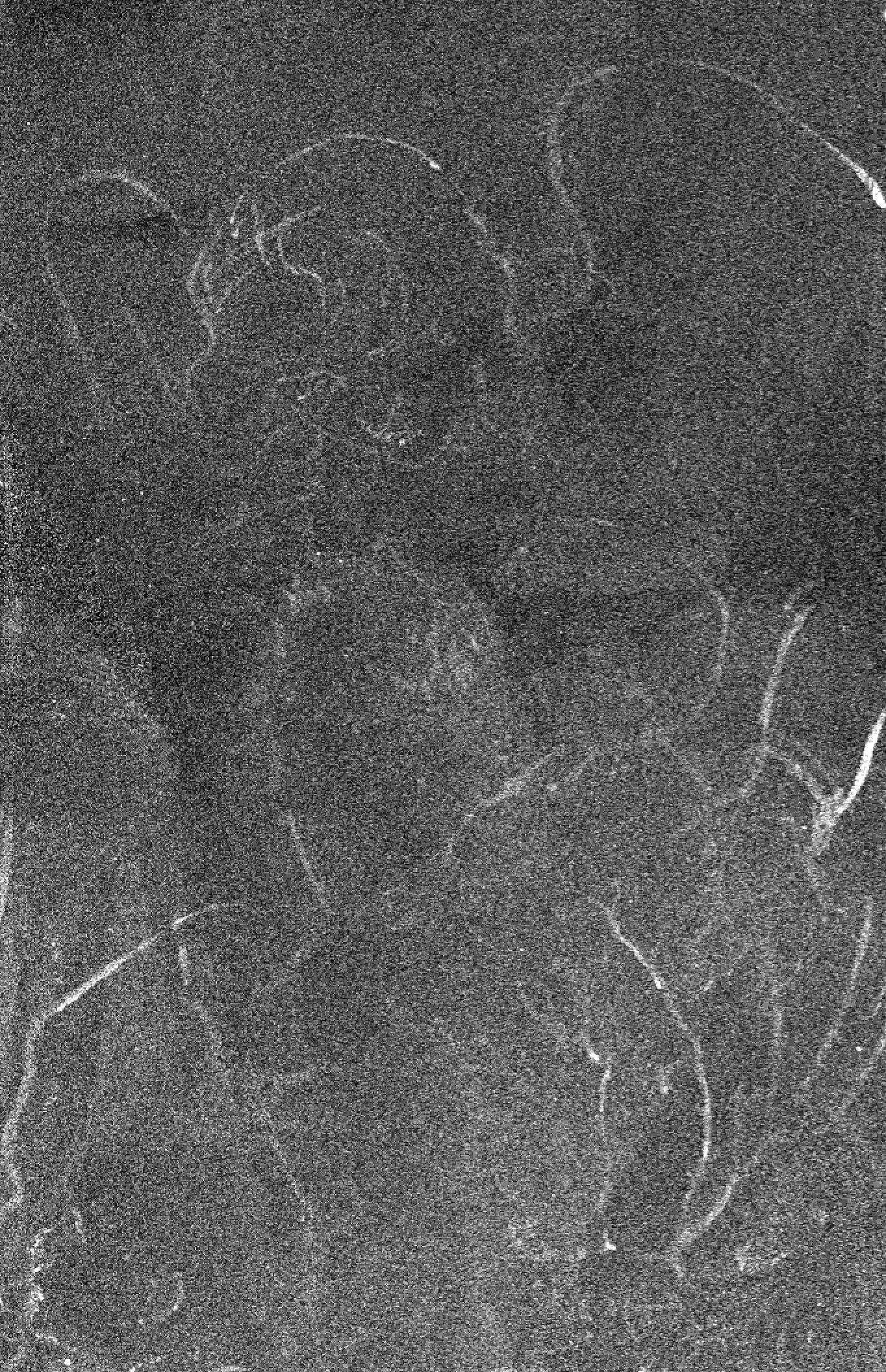 Mapa macro XRF que muestra la distribución de zinc revelando ángel y bebé de la primera composición