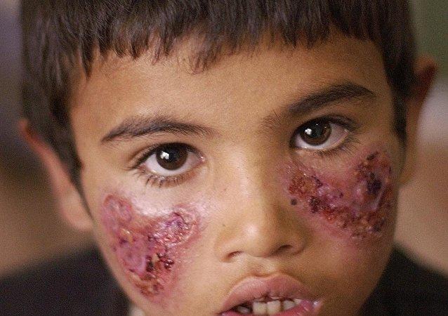 Un niño enfermo de leishmaniasis
