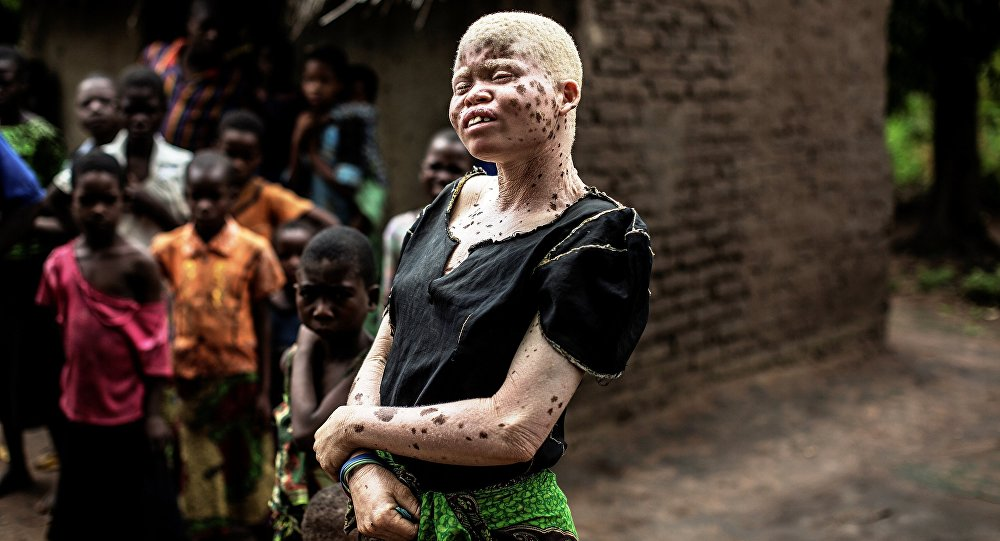 Mainasi Issa, una albina de Malaui