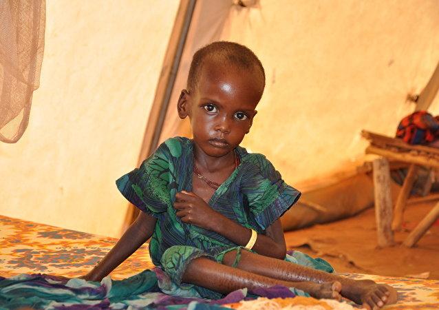 Niño desnutrido en la tienda de campaña de la ONG Médicos Sin Fronteras (MSF)