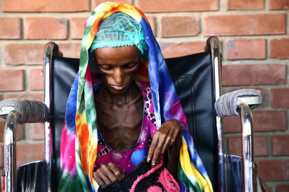 Saeeda Ahmed, de 18 años de edad, sufre de malnutrición en el hospital de la ciudad portuaria de Hodeidah, Yemen