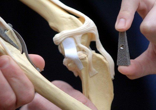 Implante de hueso (imagen referencial)