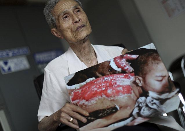 Sumiteru Taniguchi, superviviente del bombardeo atómico sobre Nagasaki ocurrido el 9 de agosto de 1945. La foto fue tomada en enero de 1946 y es hoy día exhibida en el Museo de la Bomba Atómica de Nagasaki, acompañada de las palabras de Taniguchi que dicen: Quiero que usted entienda, aunque sólo sea un poco, el horror de las armas nucleares.