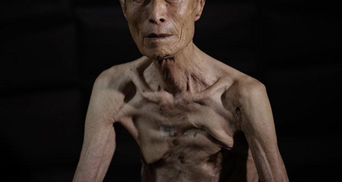 Sumiteru Taniguchi, superviviente del bombardeo atómico sobre Nagasaki ocurrido el 9 de agosto de 1945. Esta foto fue tomada el 30 de junio de 2015.