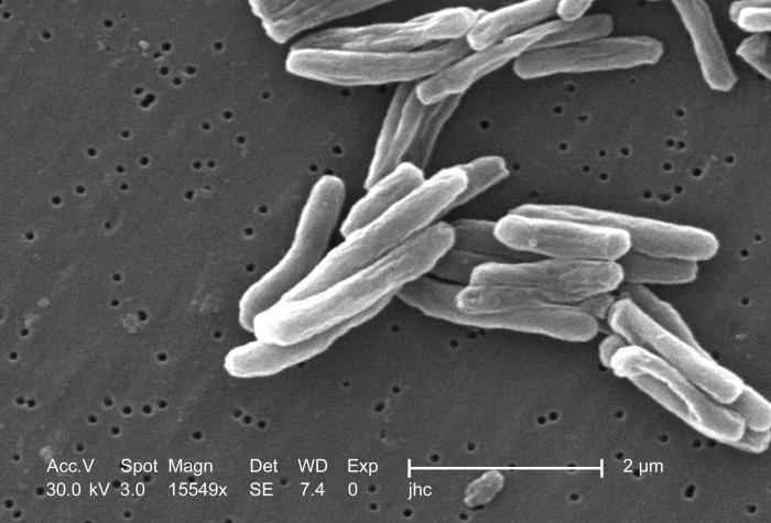 Mycobacterium tuberculosis es una bacteria responsable de la mayor cantidad de casos de tuberculosis en el mundo.