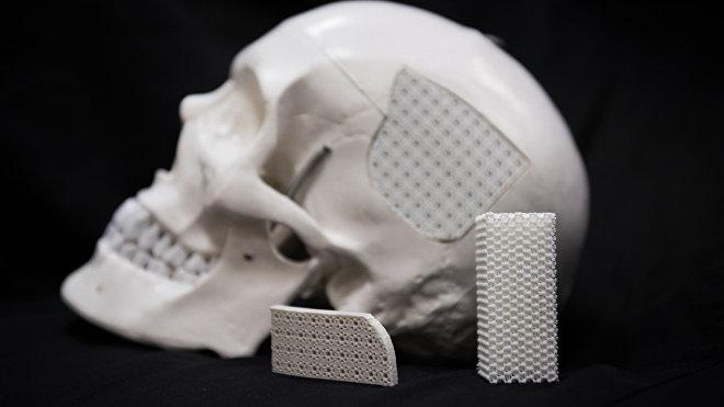 Los implantes fabricados por científicos rusos