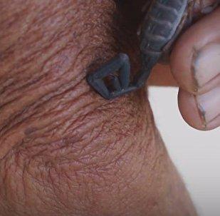 Métodos ancestrales: picaduras de escorpión contra el dolor