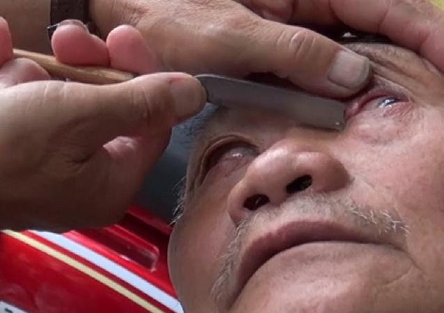 ¡Hazte un original 'peeling' ocular! Un barbero utiliza un cuchillo para limpiar los ojos