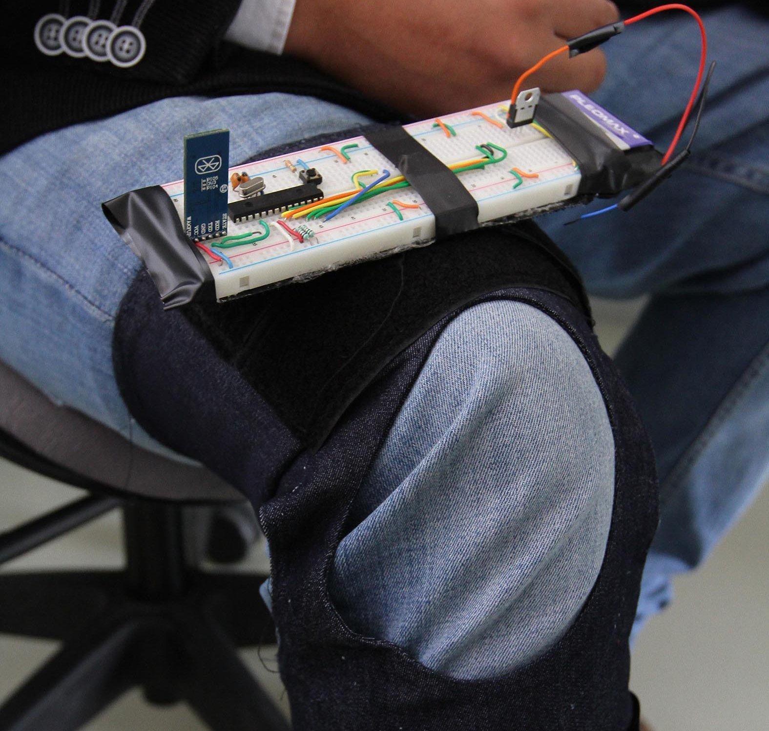El precio de las prótesis rondarán unos 10.000 pesos