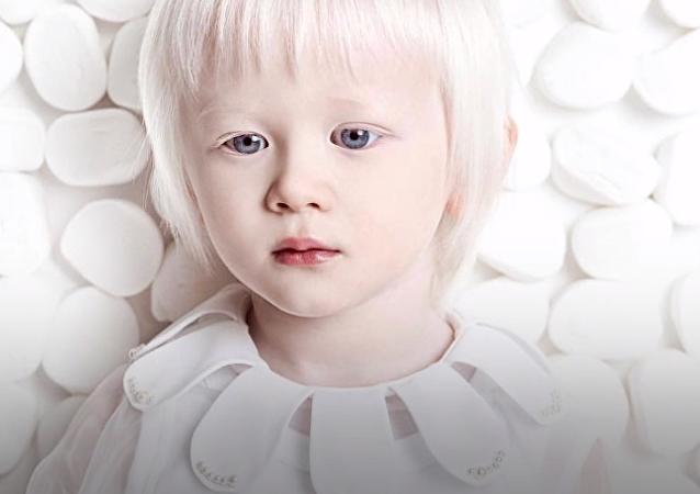 Estos hermanos tienen algo peculiar: son albinos