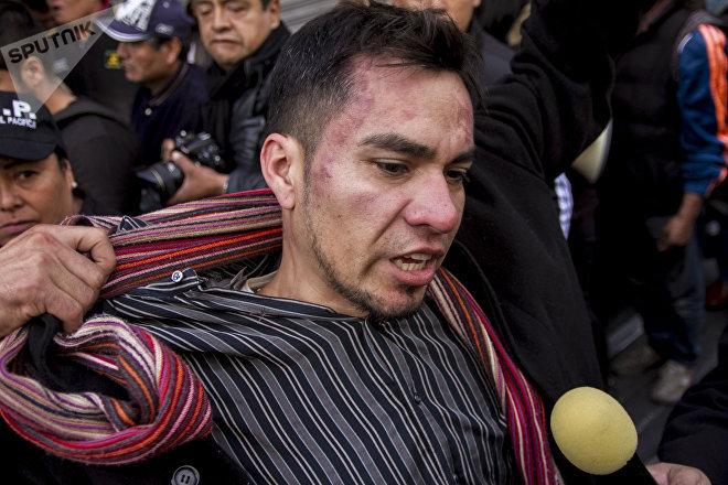 Lesionado por policías de la Ciudad habla con la prensa tras lo sucedido