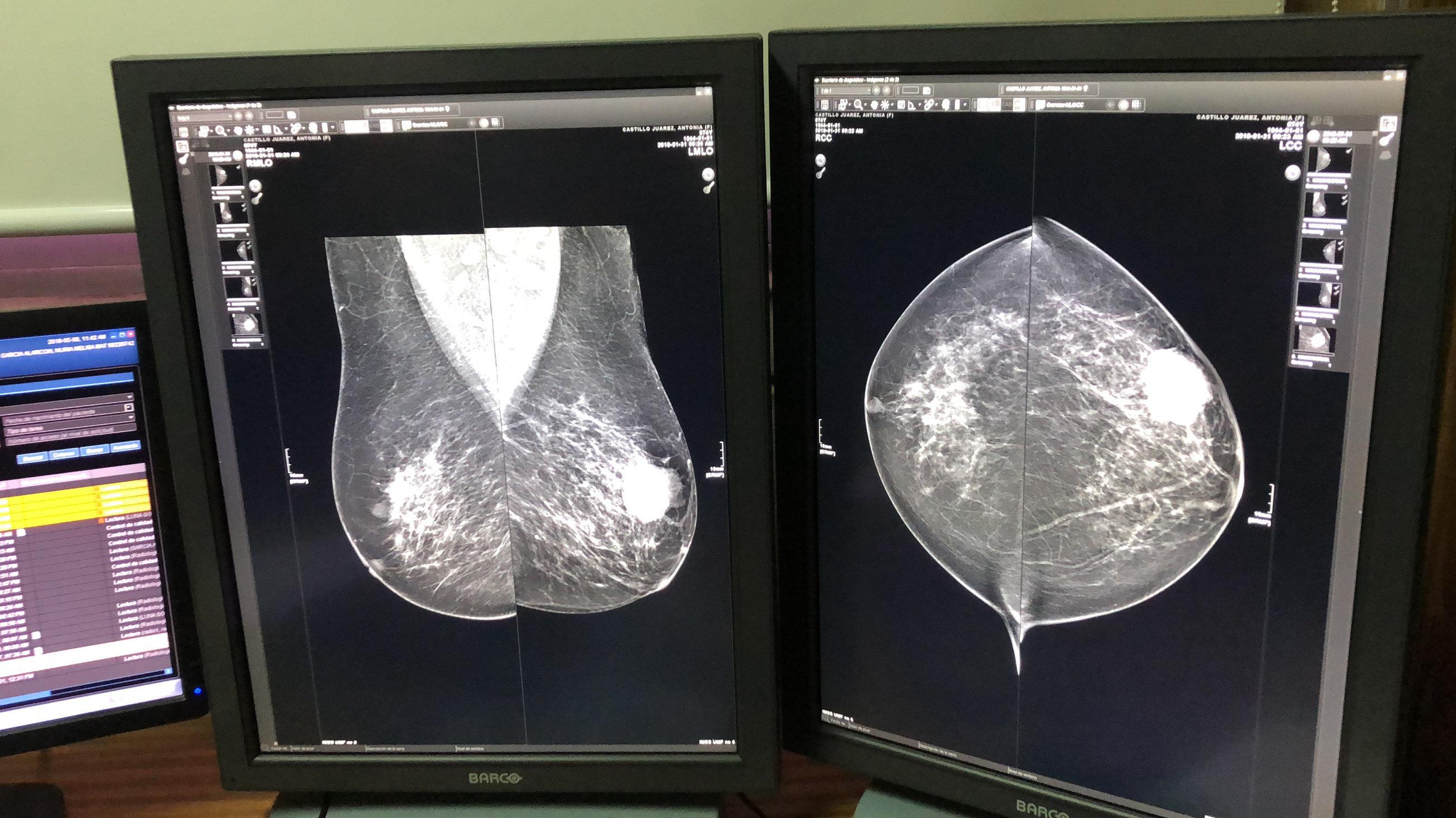 El proceso de la detección de biomarcadores tumorales de cáncer de mama